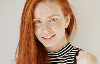 Beautiful young redhead girl with perfect smile. Orthodontists in Marietta GA.