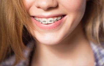 Marietta GA Orthodontic Treatments for Teens