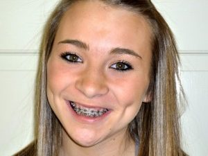 Smiling teenage girl with metal orthodontic braces.